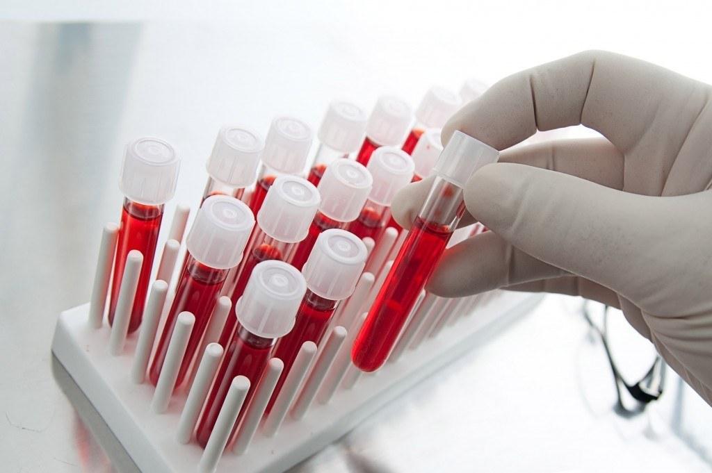 Анализ крови для диагностики заболевания