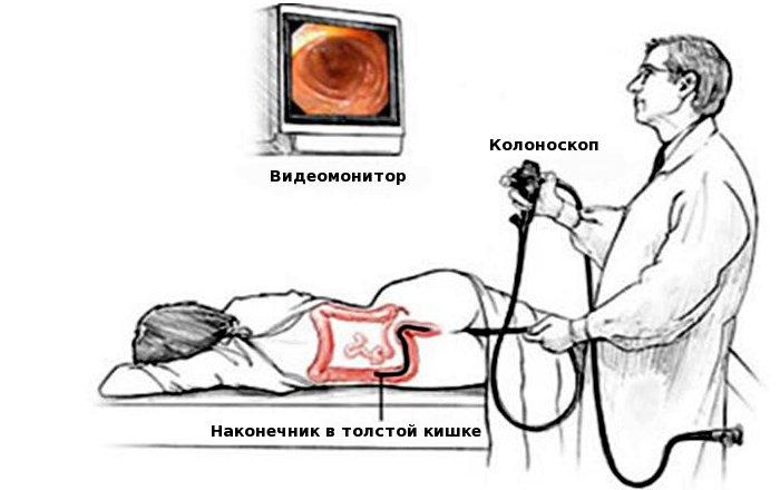 analniy-seks-nuzhna-podgotovka