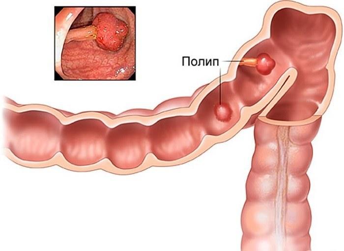 Образование полипов в кишечнике