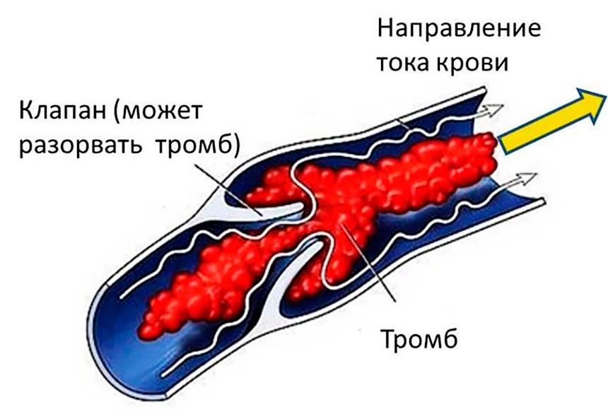 вывести холестерин в крови