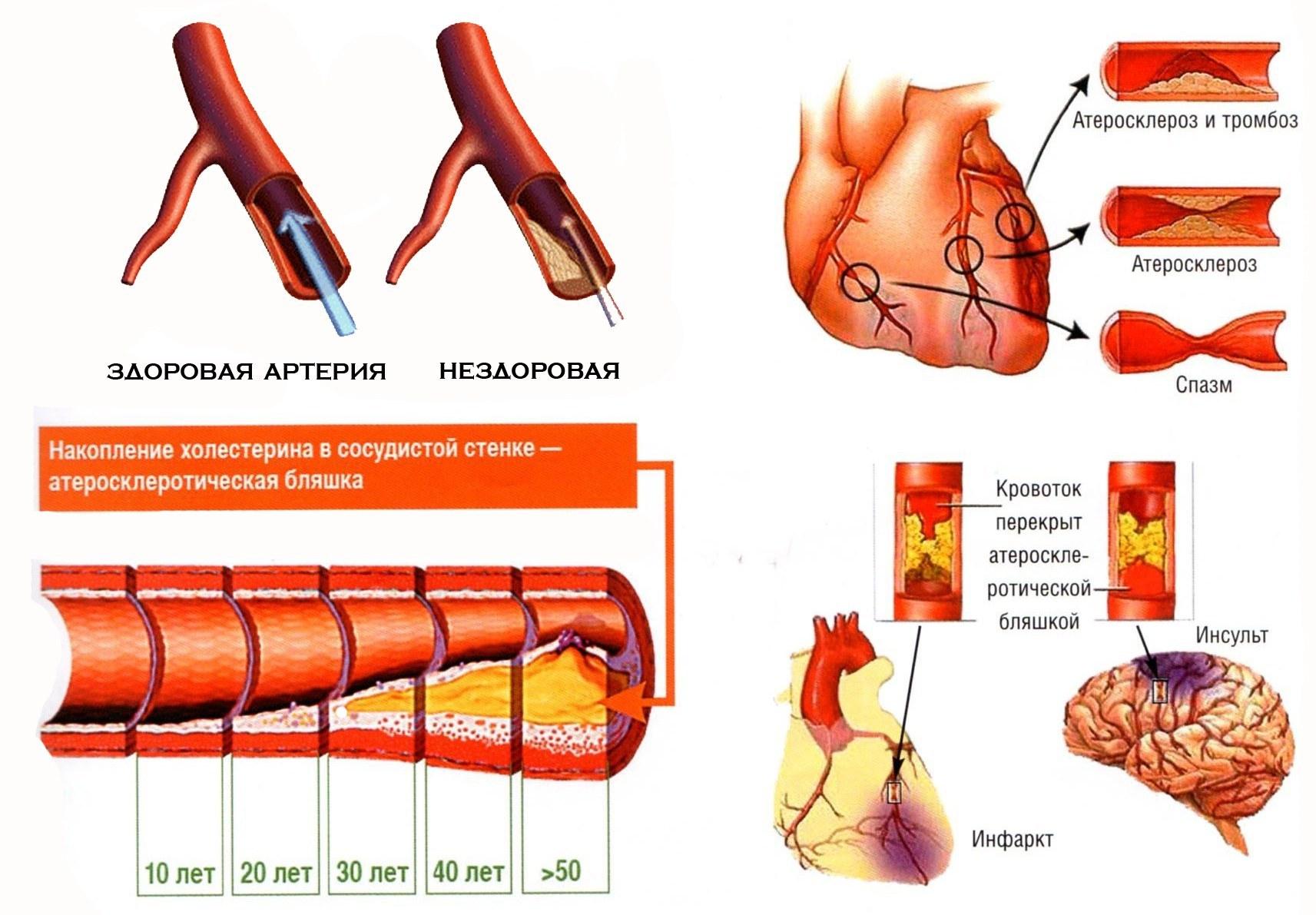 уровень холестерина после инфаркта