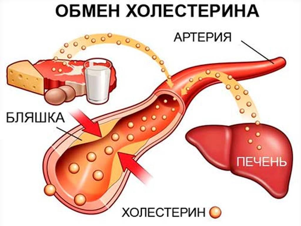 Холестериновые бляшки симптомы головного мозга