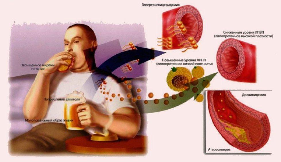 Причины повышенного уровня холестерина