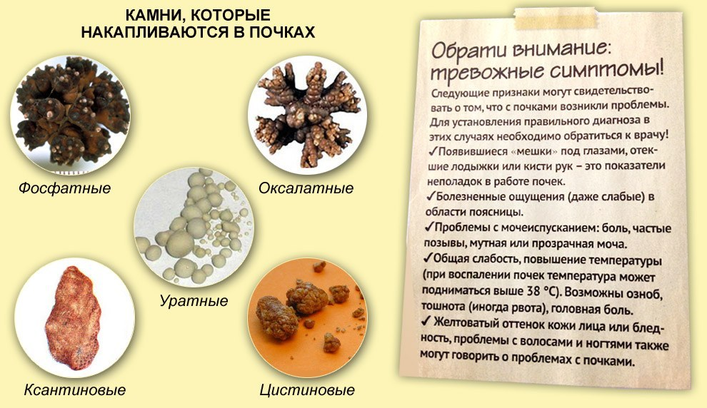 как диагностировать паразитов в организме