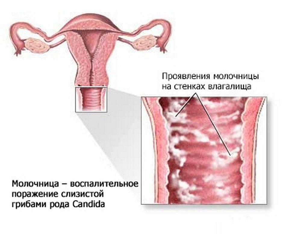 Зуд в заднем проходе у женщин