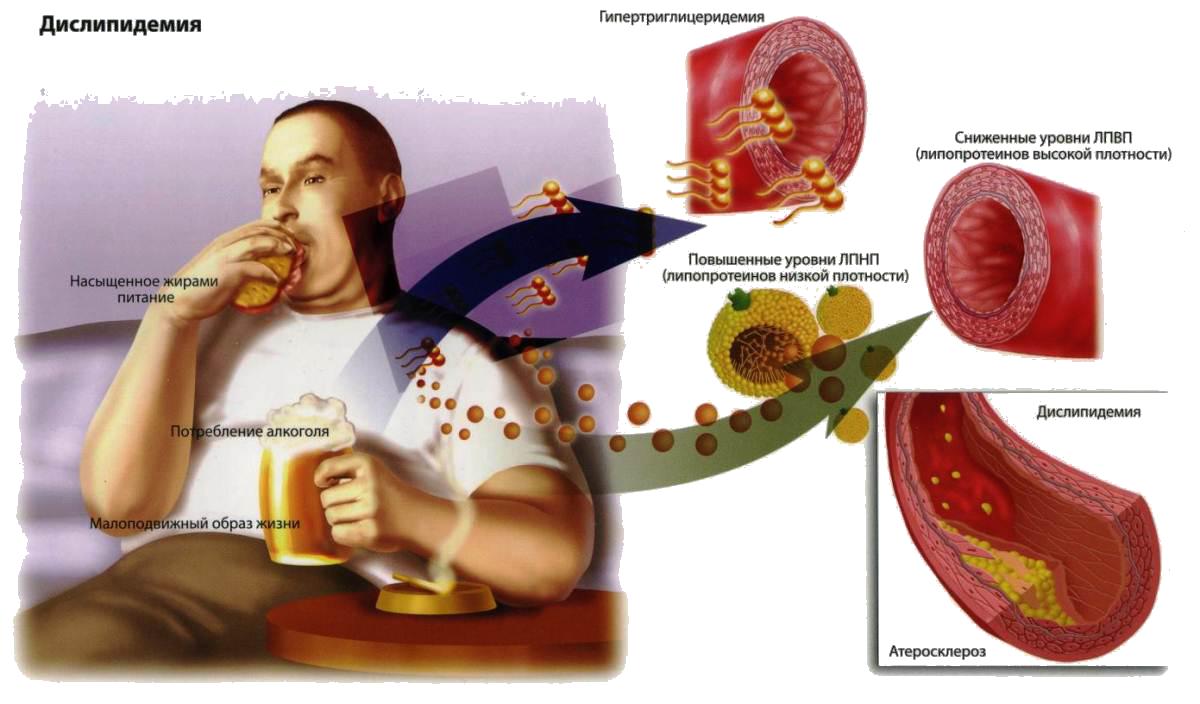 лечение от холестерина
