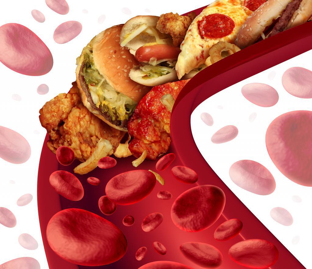 Чистка сосудов от холестерина после инфаркта