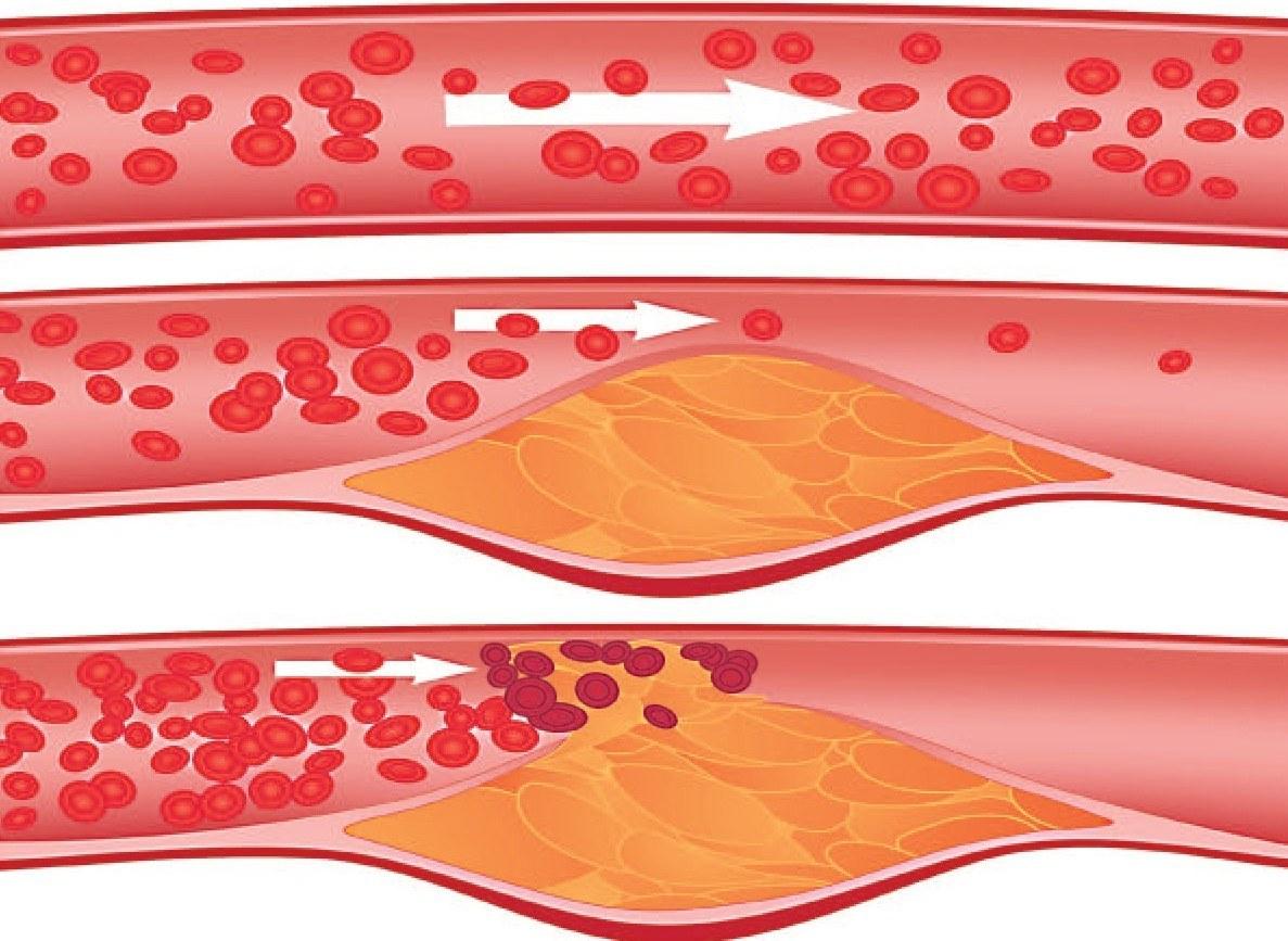 средства снижающие холестерин в крови
