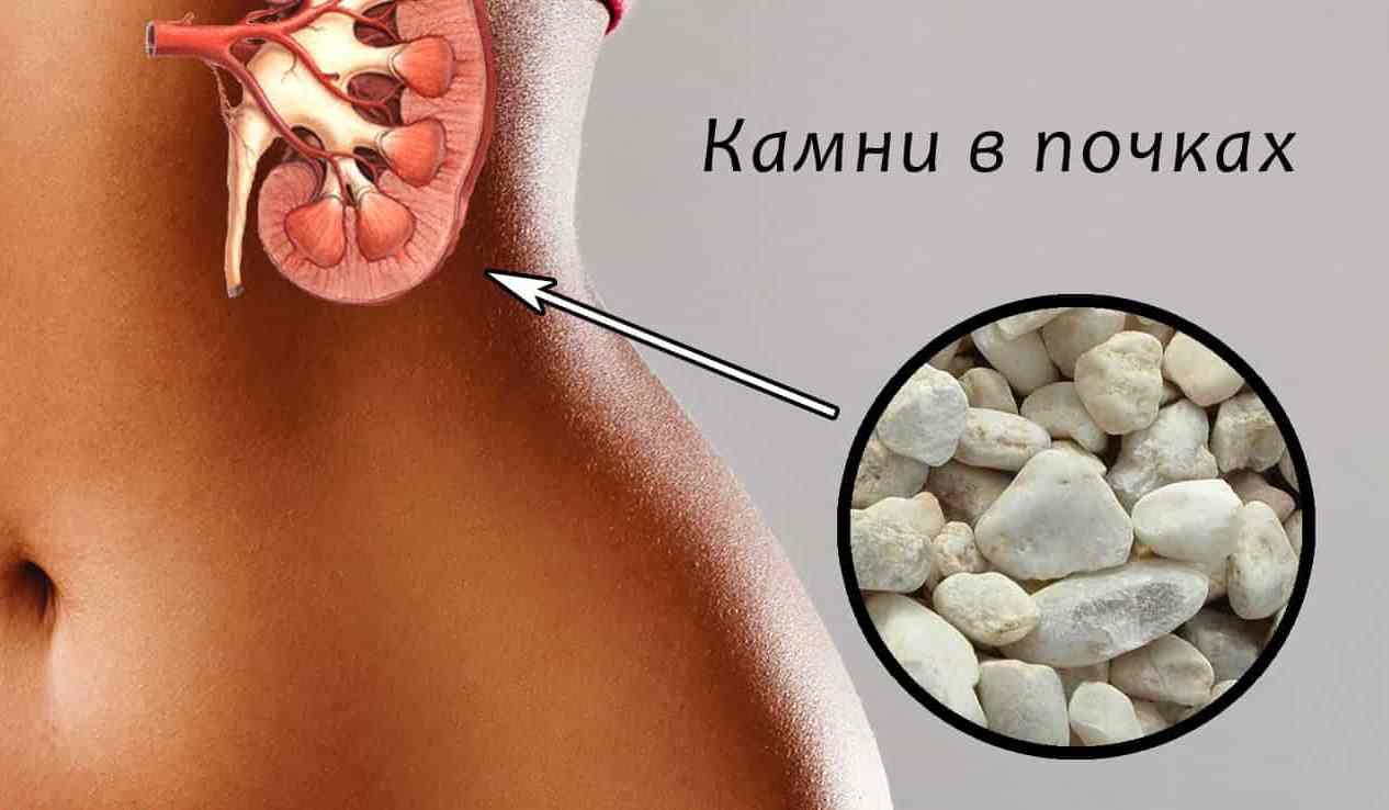 Лекарство от боли в шее при шейном остеохондрозе