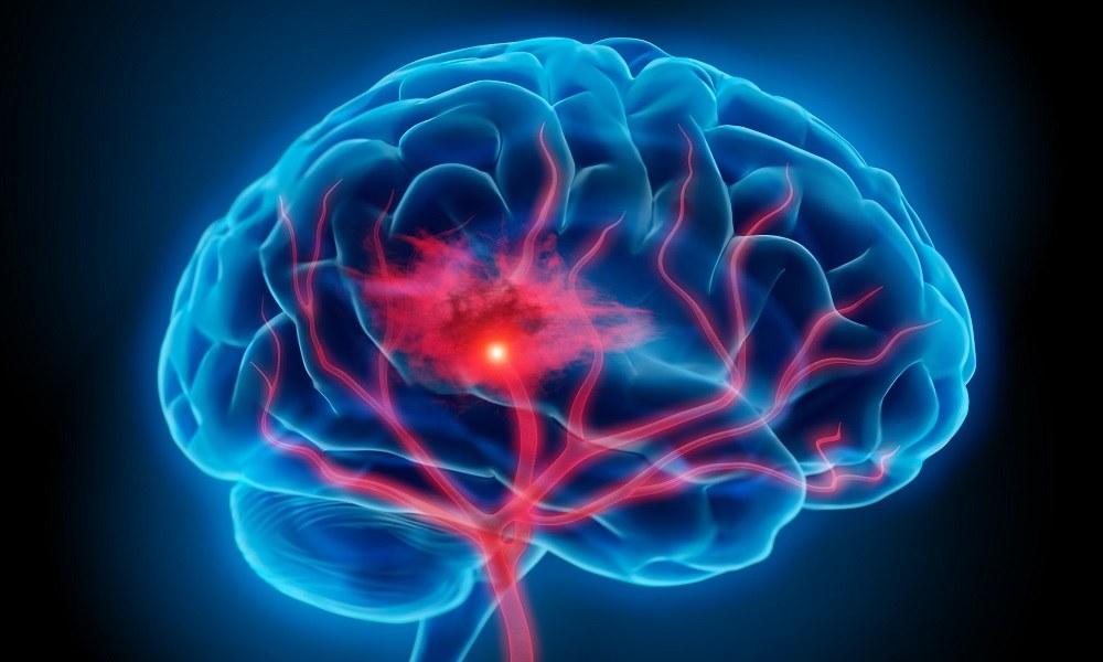 Воспаление оболочек головного мозга
