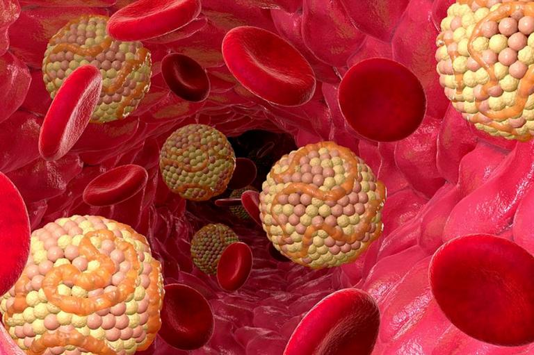 Как влияет кофе на холестерин в крови