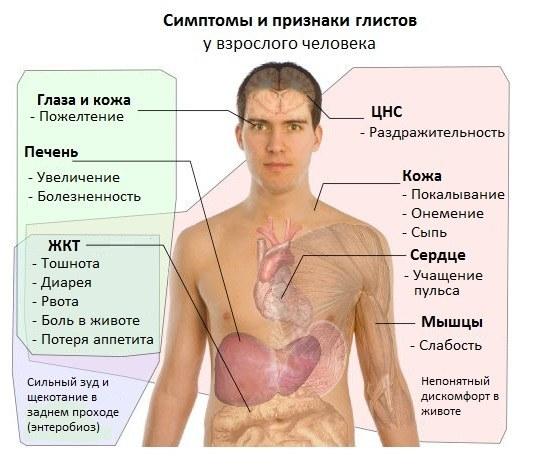 Симптомы гельминтов у человека