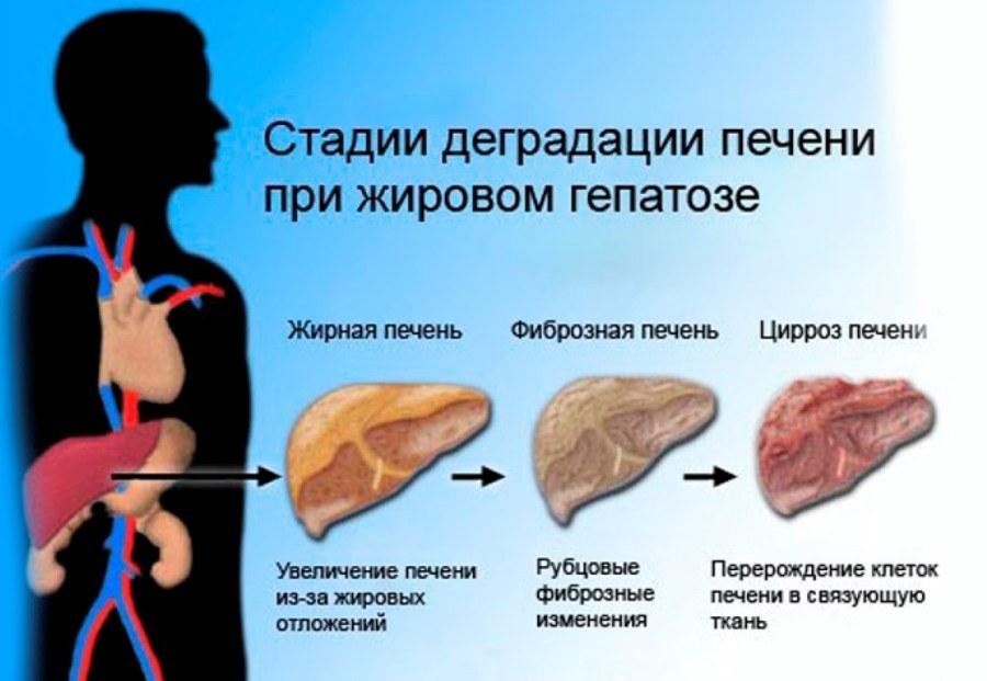 Препараты для лечения жирового гепатоза печени отзывы