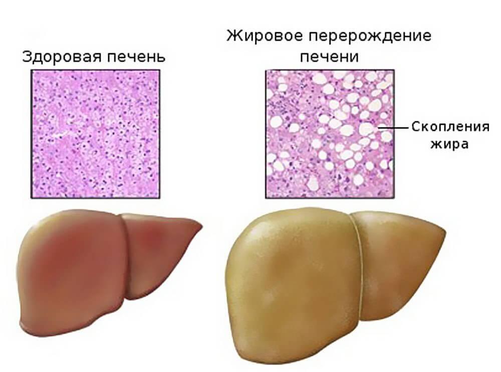 Можно ли кормить грудью при хроническом гепатите б