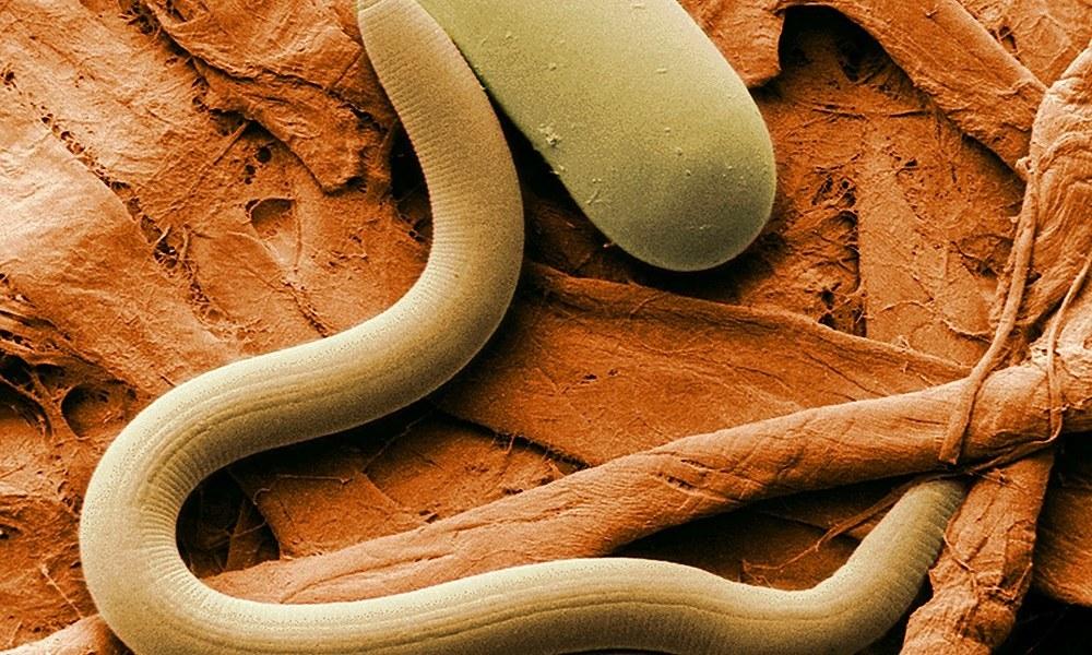 чем выводить паразитов из организма человека