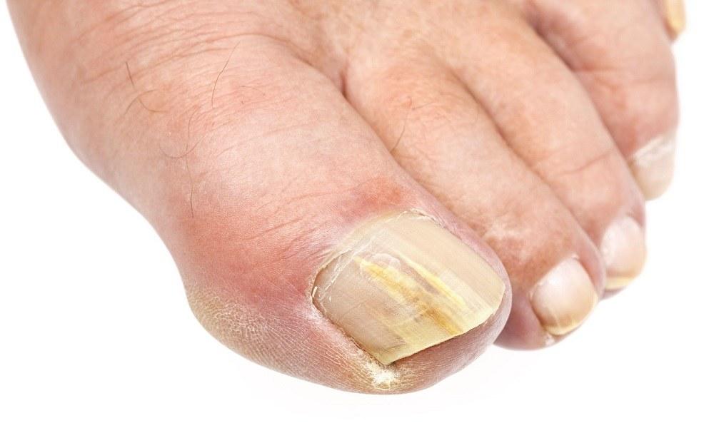 Народный способ борьбы с грибком ногтей