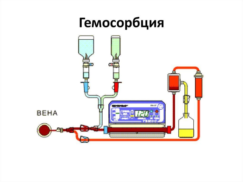 Гемосорбция
