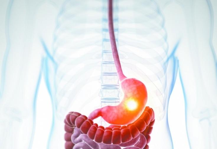 Наличие воспаления в желудочно-кишечном тракте