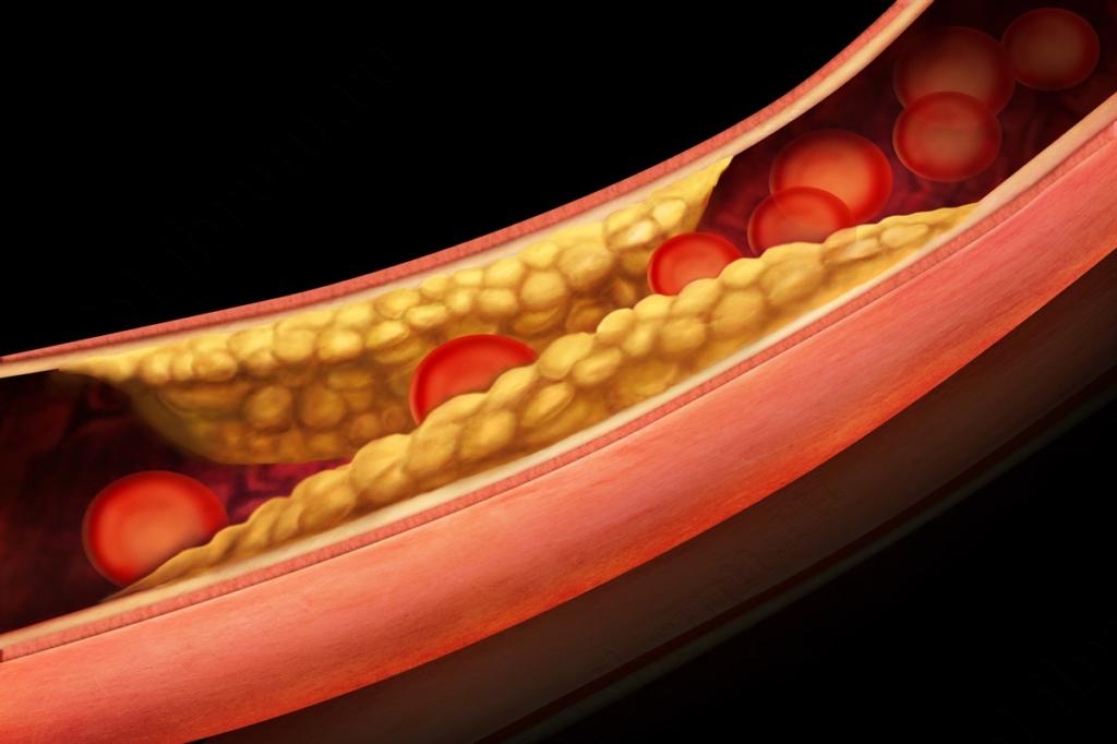 Обильное отложение холестерина
